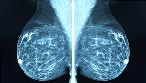 Mammography 2